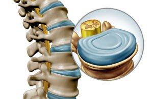 vertebral disc components